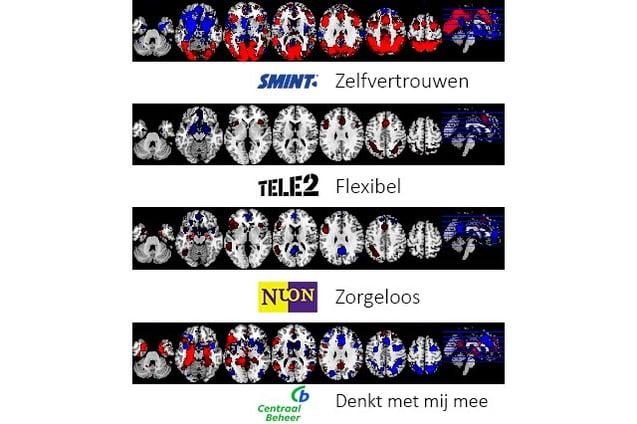 NeuroBranding---Hoe-worden-merkassociaties-gemeten--fMRI-scans