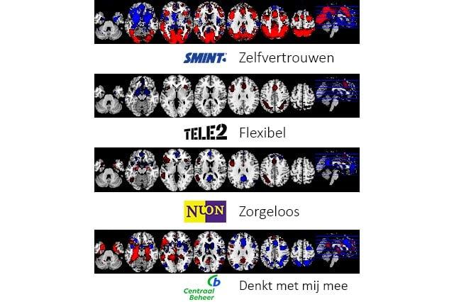 NeuroBranding - Hoe worden merkassociaties gemeten? fMRI scans