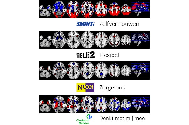 NeuroBranding Hoe worden merkassociaties gemeten fMRI scans