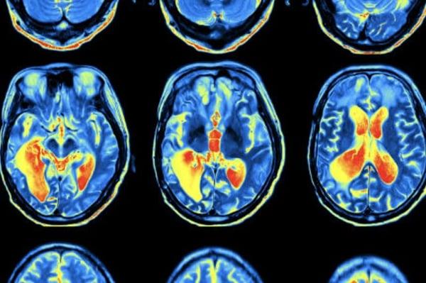 Neurensics fmri scan onze aanpak
