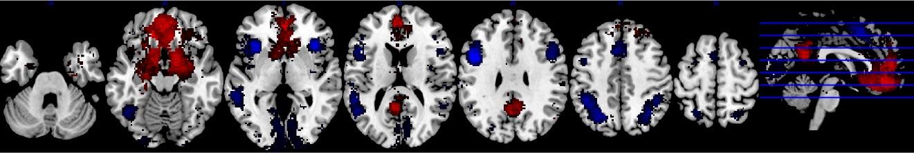 Neuro Brand Signature Smint Neuromarketing-onderzoek